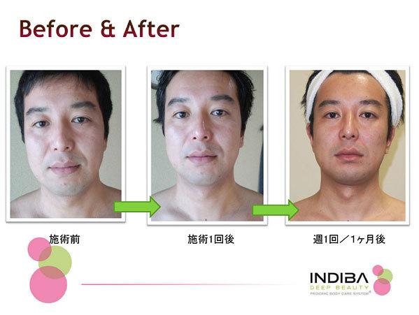 インディバフェイシャル(男性)施術前・施術後の写真