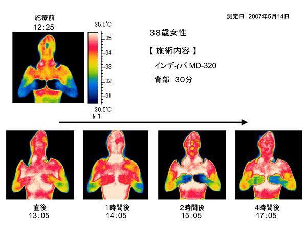 38歳女性のインディバMD-320施術後サーモグラフィ