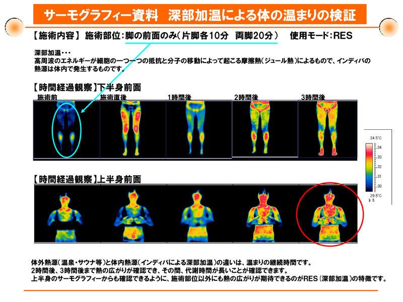 ボディマッサージ深部加温による体の温まりの検証
